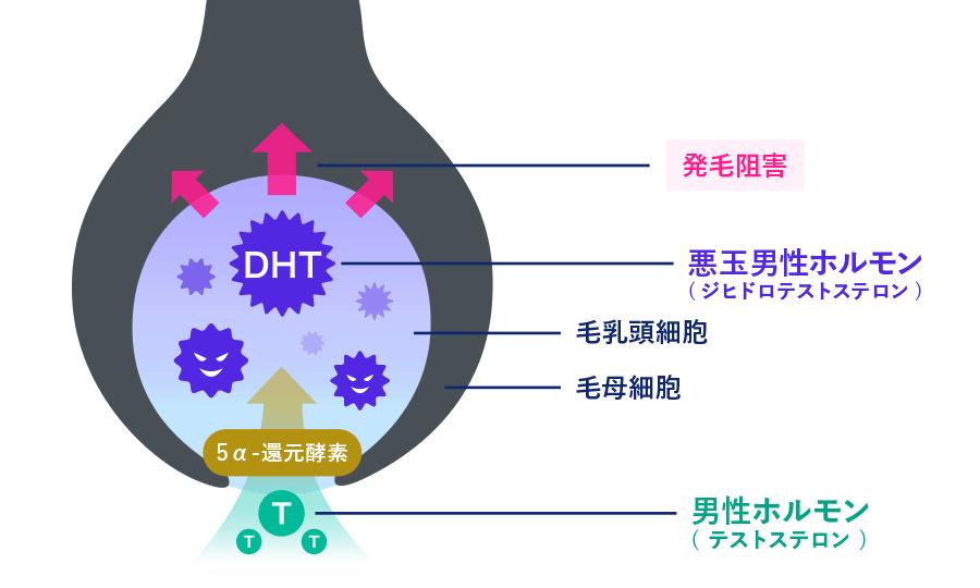 AGAのメカニズム:男性ホルモン(テストステロン)が、5α還元酵素によって悪玉男性ホルモン(ジヒドロテストステロン)に変換され、毛乳頭細胞で毛母細胞の分裂を抑制し、発毛阻害を引き起こす